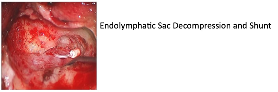 Endolymphatic Sac Decompression and Shunt